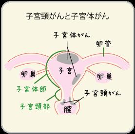 子宮頸がんは、子宮の入り口に出来るがん。自覚症状は、ほとんどありません